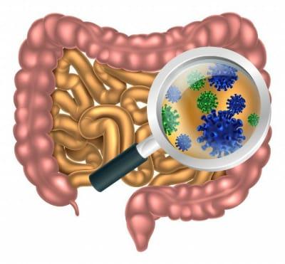 Вирусное и бактериальное поражение желудочно-кишечного тракта говорит о том, что в кишечнике идет стремительными темпами образование новых особей стафилококка