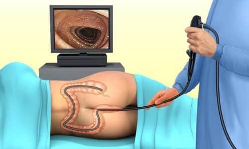 Для диагностики геморроя используют колоноскопию - визуальное исследование слизистой оболочки в прямой кишке