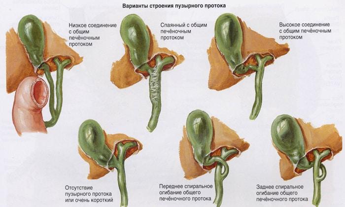 Дискинезия желчевыводящих путей, приносит кратковременные тупые ноющие болезненные ощущения в правом подреберье