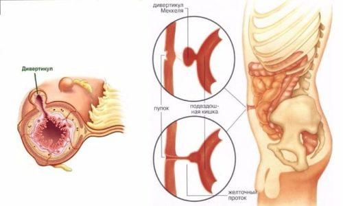 Дивертикулы толстой кишки являются патологическими образованиями, которые развиваются в результате дистрофических изменений в мышечных стенках кишки