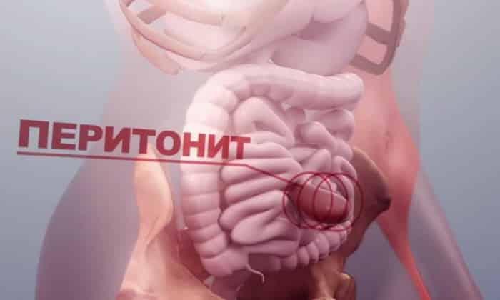 Перитонит - очень редкое осложнение, которое становится причиной того, что содержимое кишечника выходит в брюшную полость