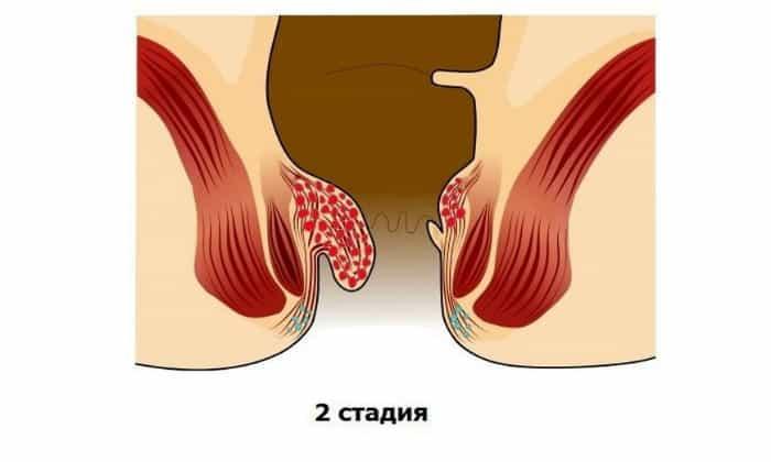 2 стадия характеризуется заметным увеличением геморроидального узла, происходит формирование ножки
