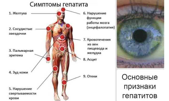 На последних стадиях гепатита под правым ребром у человека могут появиться болезненные ощущения