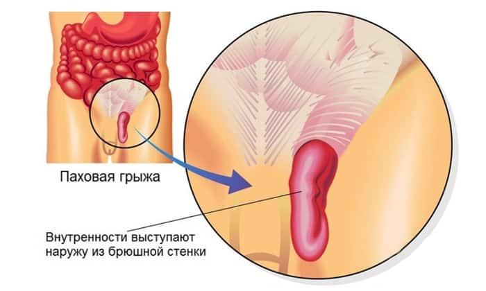 Причиной болей в животе может быть ущемлённая паховая грыжа