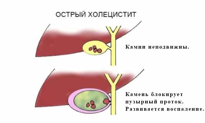 Воспаление желчного пузыря, или острый калькулезный холецистит, чаще всего развивается абсолютно внезапно вследствие уменьшения выработки желчи