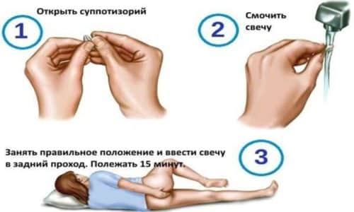 Суточная норма для одного взрослого человека - 1 суппозитория, которая вводится в прямую кишку
