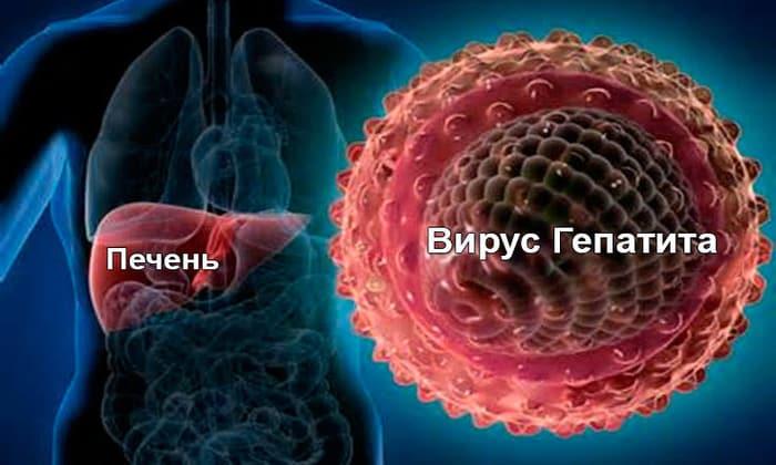 Причиной появления панкреатит может стать, гепатит