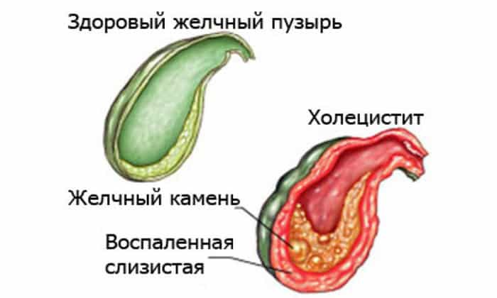 Тошнота может быть вызвана хроническим холециститом