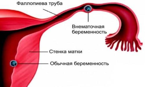 Неприятный симптом может возникнуть в результате преждевременной отслойки плаценты, при внематочной форме беременности