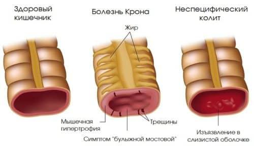 При данной патологии нередко образуются язвы. Если язва кровоточит, в кале появляется кровь
