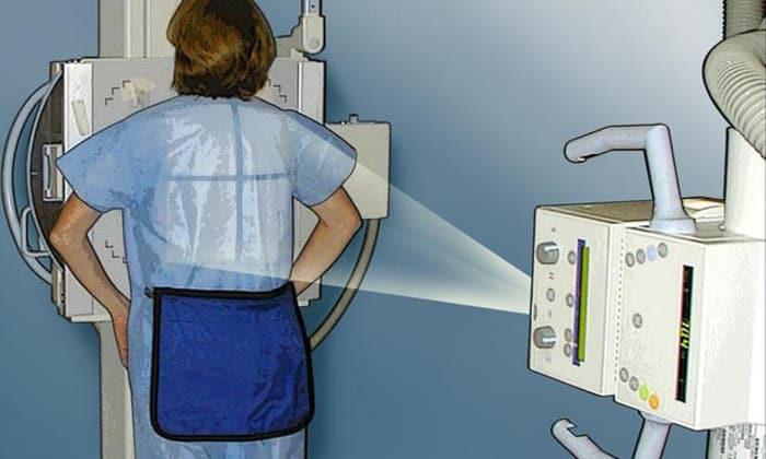 Рентген желудка - это диагностический способ исследования, который позволяет выявить наличие патологий в органах пищеварительного тракта