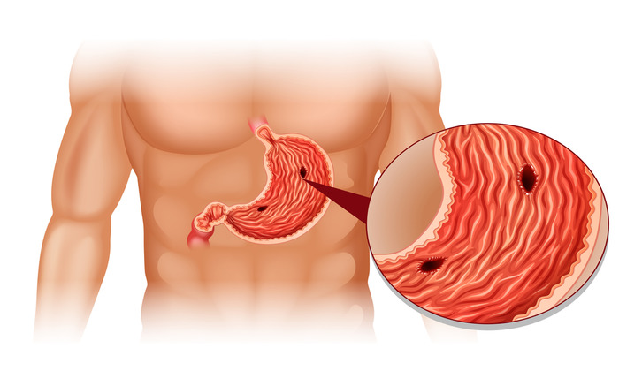 Язва желудка может способствовать развитию гастродуоденального рефлюкса