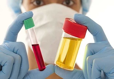Проводят диагностику диспепсии, пациент сдает кровь и мочу для исследования