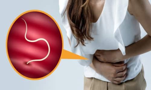 Наиболее частыми причинами хронического воспаления кишечника, это наличие гельминтозов