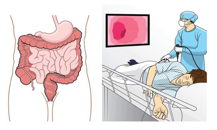 При диагностике болезни Крона применяют колоноскопический метод исследования