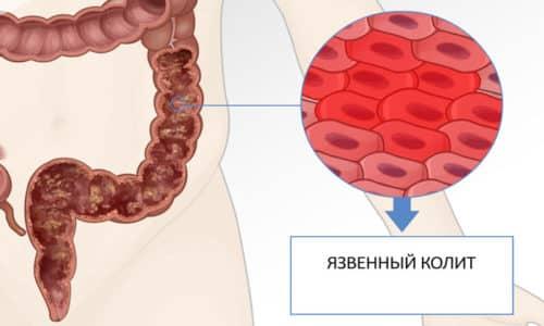 Кровотечение из заднего прохода является одним из самых частых симптомов в фазу обострения при язвенном колите