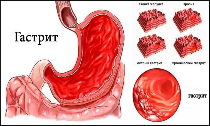 Гастрит может быть вызван, повышенной кислотностью желудка