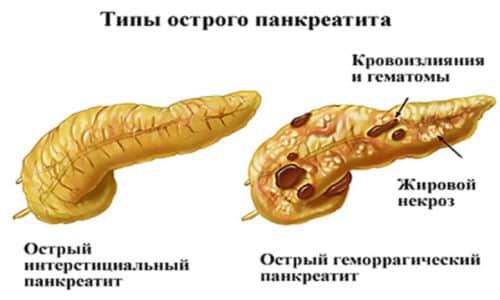 Острый панкреатит образует натиск на проток, создающий изменения в поджелудочной железе путем ее повреждения