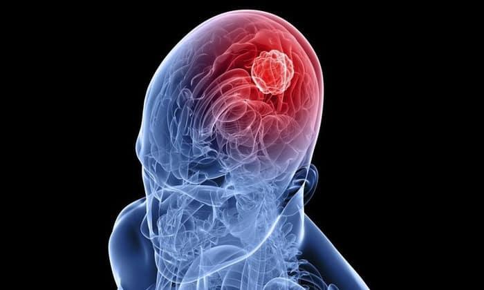 Опухоль мозга может быть причиной головной боли