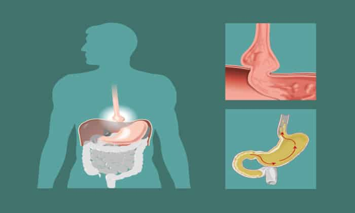 Рентген может быть назначен для подтверждения грыжи желудка