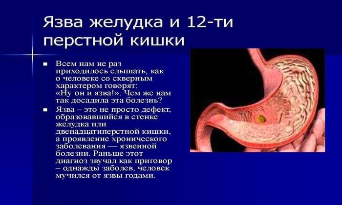 Повышенная кислотность желудка, может спровоцировать, язвенную болезнь