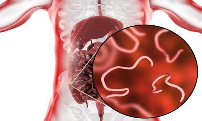 Гельминты (глисты) на стенках кишечника могут вызвать кишечные колики