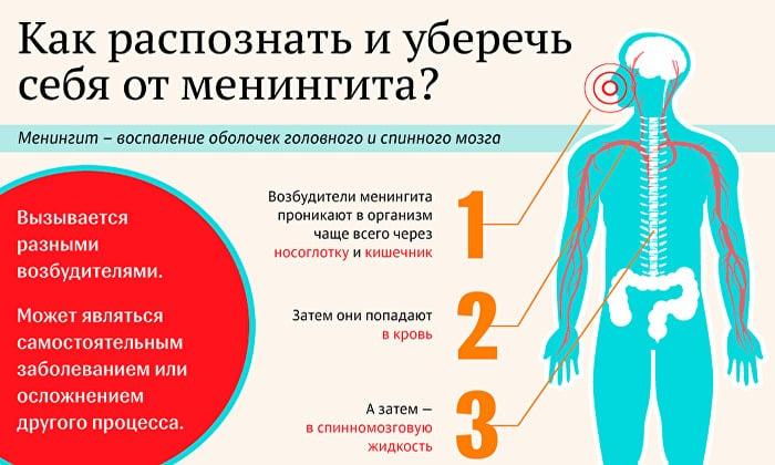 Менингит может стать причиной головной боли