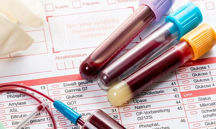 Общий и биохимический анализ крови так же необходим при диагностике