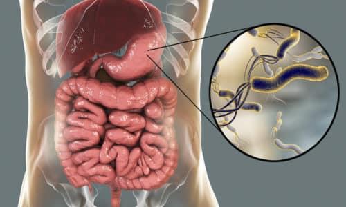 Хеликобактер пилори, обитают в желудке и двенадцатиперстной кишке и вызывают развитие заболеваний желудочно-кишечного тракта