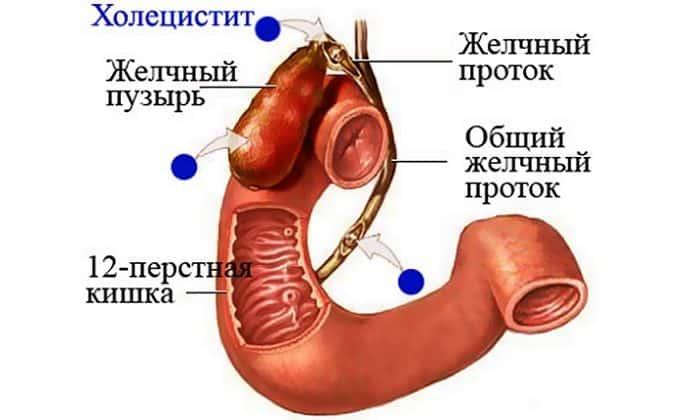 Холецистит может стать причиной болей с правой стороны подреберья