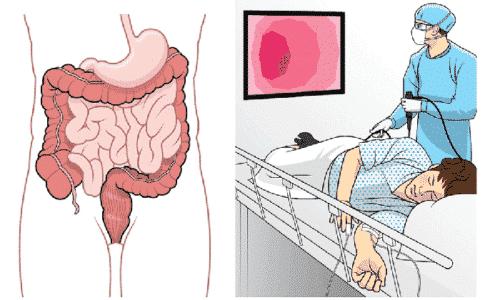 В инструментальную диагностику для постановления диагноза входит, колоноскопия