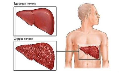 Хронический панкреатит является результатом частых приступов острого заболевания что приводит к другими последствиям, таких как, циррозом печи