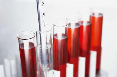 Если был поставлен диагноз неосложненная форма дивертикулеза, то обязательно делают общий анализ крови