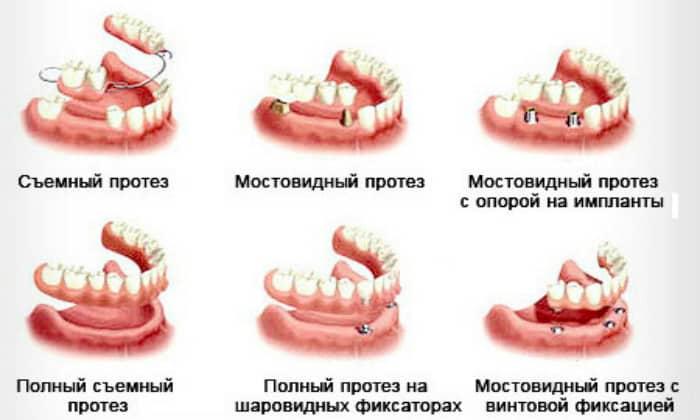 Среди стоматологических заболеваний, которые характеризуются привкусом кислоты во рту, можно отметить наличие у пациента зубных протезов