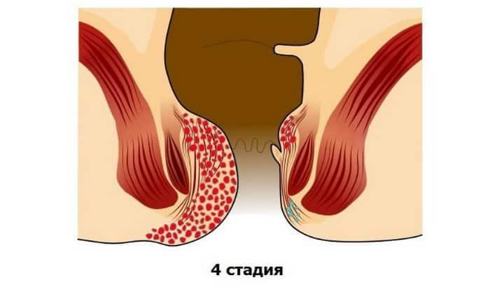 Последняя стадия характеризуется большим размером шишек, которые нередко достигают 2 см в диаметре
