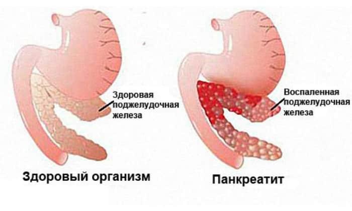 Диарея может возникнуть при воспалении поджелудочной железы