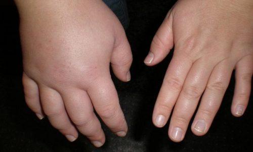 Заболевания желудочно-кишечного тракта носят воспалительный характер. Процесс представляет собой реакцию организма на вид повреждения, которое проявляется в виде отека