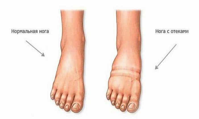 Как вспомогательное средство Детралекс назначают при отеках голеностопных суставов