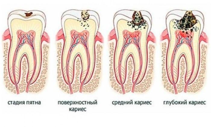 Среди стоматологических заболеваний, которые характеризуются привкусом кислоты во рту, можно отметить кариес