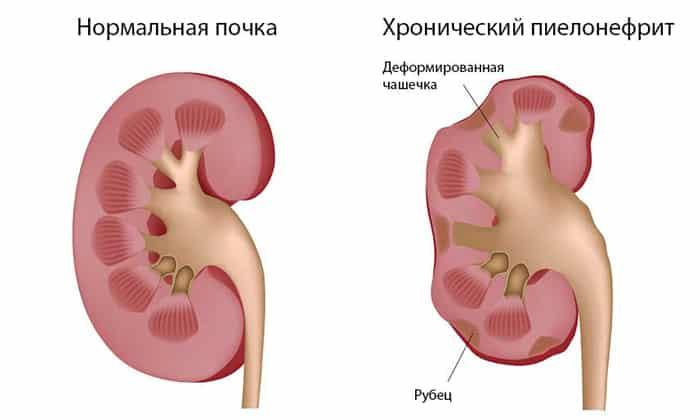 Причиной болей в животе может быть развитие пиелонефрита