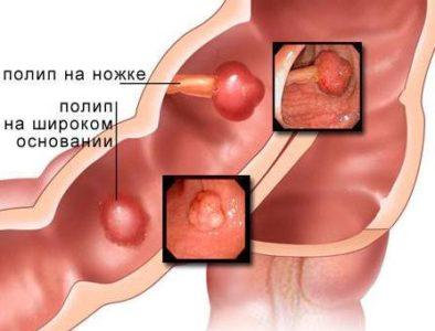 Форма и консистенция полипов в кишечнике может быть разнообразной: в виде ветвей, грибовидной, шарообразной