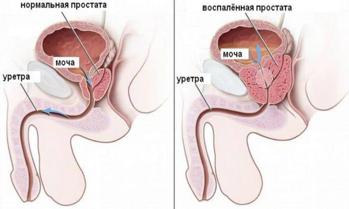 Улучшая кровообращение в области таза и в простате, Детралекс усиливает воздействие других лекарственных средств и убирает воспалительные процессы в области предстательной железы