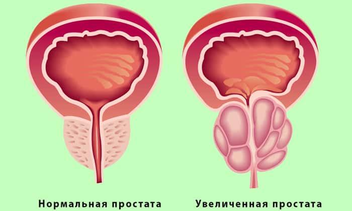 У мужчин боль в низу живота может вызвать простатит