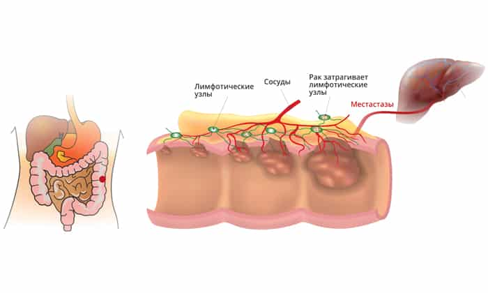 Основные симптомы и лечение будут зависеть от места локализации опухоли