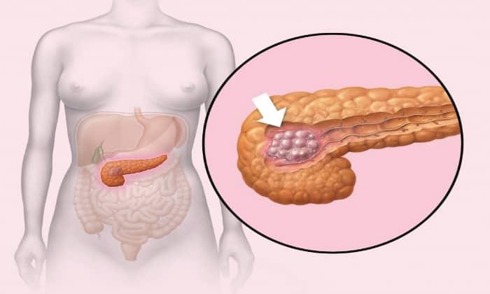 Нарушения могут быть обусловлены злокачественной опухолью, расположенной на поджелудочной железе
