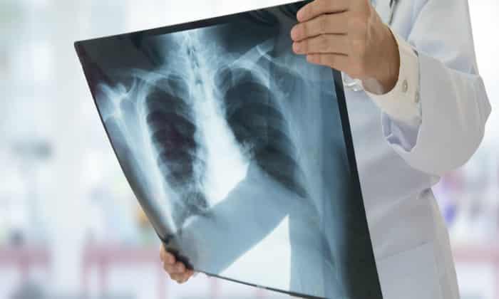 Рентген направлен на выявление патологий, например, язв, грыж, сужений, которые могут затронуть не только пищеварительную систему, но органы дыхания