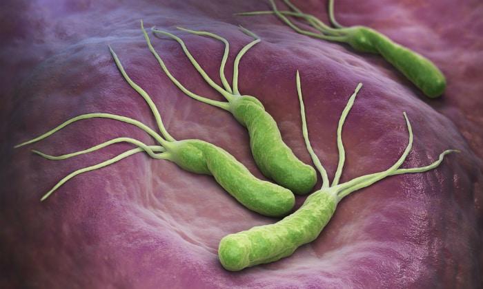 Как правило, причиной повышенной кислотности может являться бактерия Helicobacter pylori
