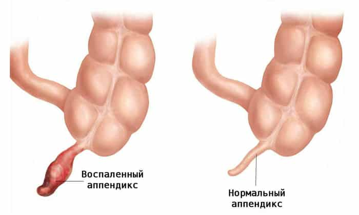 Причиной болей в животе может быть воспалённый апендикс