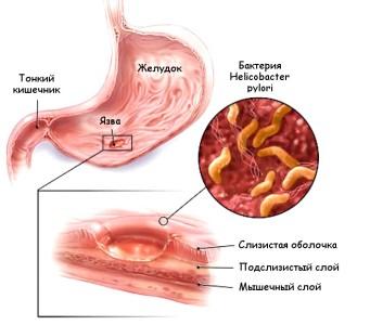 Основные причины формирования в стенке желудка маленького или глубокого изъяна слизистой оболочки - заражение микробом Helicobacter pylori