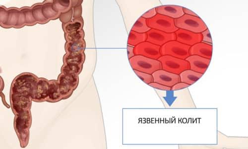 Эрозивный тип считается начальным этапом формирования язвенного вида болезни